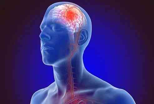 Simptomele timpurii ale accidentului vascular cerebral
