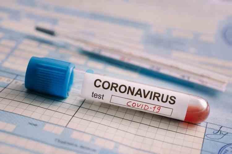 8186 decese - 7304 cazuri noi de coronavirus - 314.295 cazuri în România (10.11.2020)