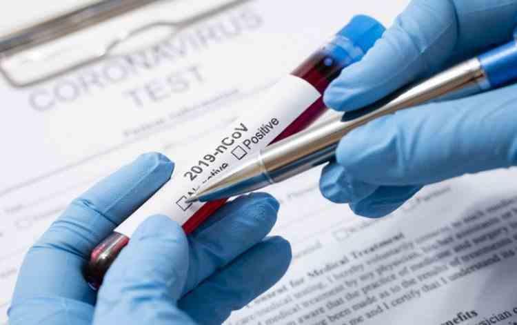 12.320 decese - 5.231 cazuri noi de coronavirus - 513.576 cazuri în România (06.12.2020)