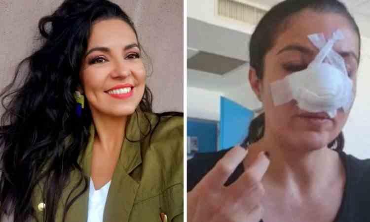 Cum arată Cristina Joia fără mască, la cinci luni de la agresiunea din supermarket