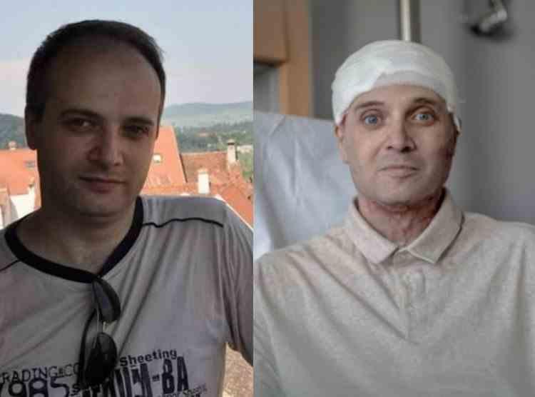 Medicul Cătălin Denciu, grav rănit în incendiul de la spitalul din Piatra Neamț, a fost declarat Eroul Anului 2020 în Belgia