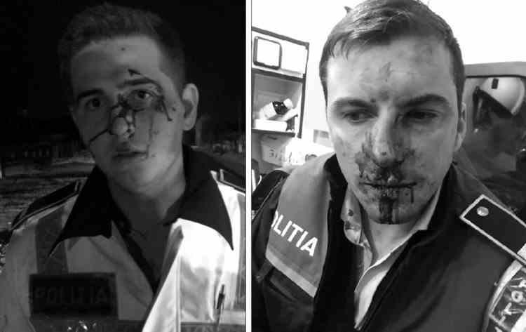 Decizia instanței în cazul polițiștilor din Vâlcea, desfiguraţi de un clan de romi la Călina