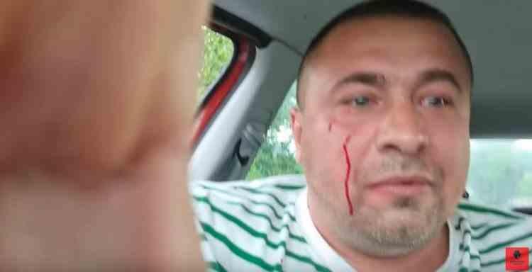 """Un activist din Buzău a fost bătut de față cu poliţiştii chemaţi la intervenţie - """"Mor cu poliția, nu se poate așa ceva"""""""