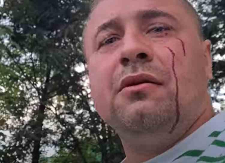 Cei trei bărbați care au bătut un activist în fața polițiștilor au fost reținuți